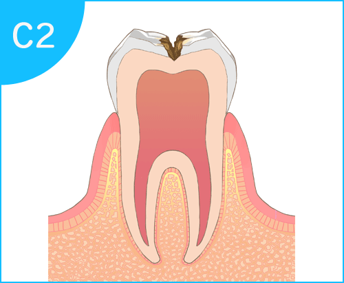 むし歯の進行過程