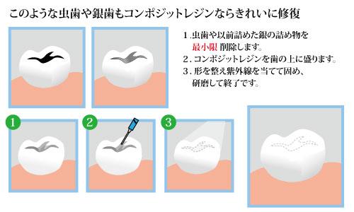 審美歯科・ホワイトニング | 世田谷区,南烏山,芦花公園駅前の ...
