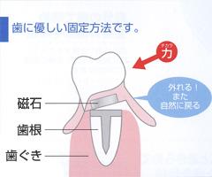 磁石式入れ歯