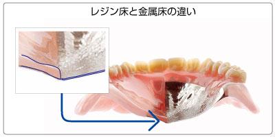 保険と自費では入れ歯の厚さにも違いがあります